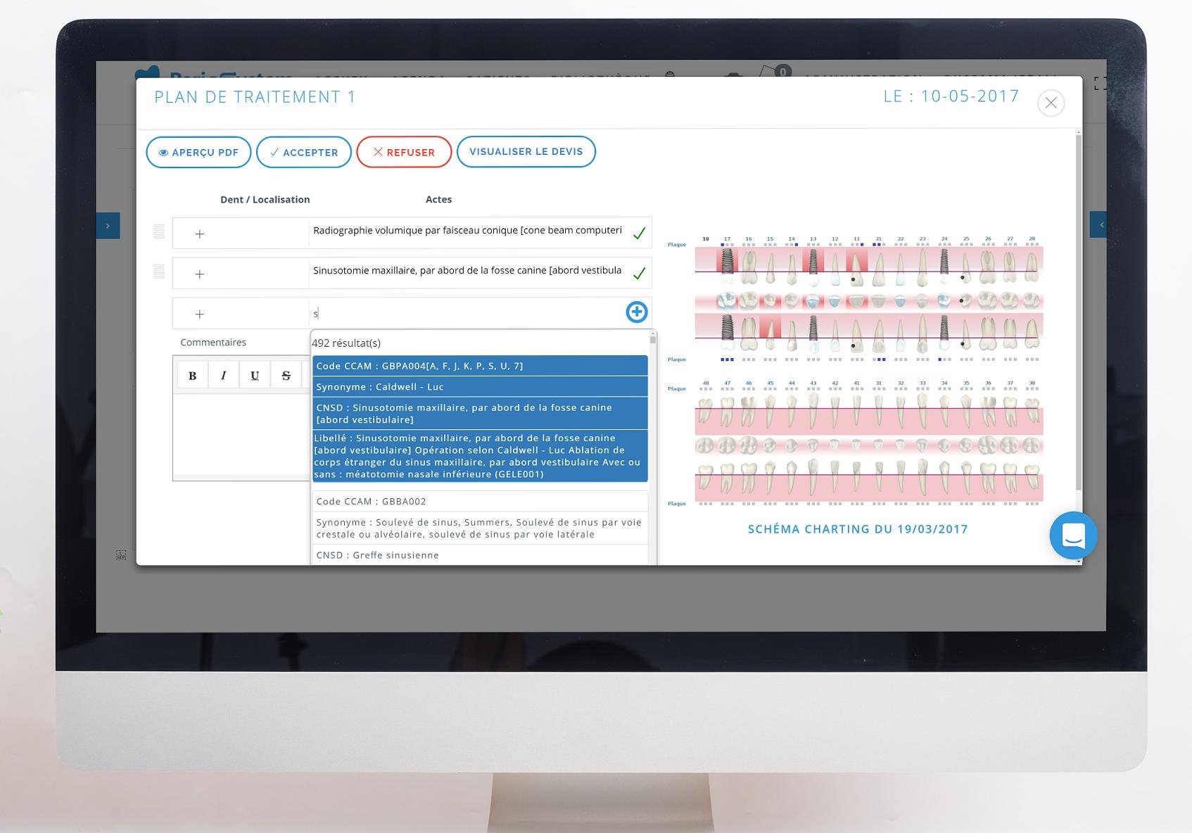 Le plan de traitement via le logiciel en ligne de gestion dentaire PerioSystem